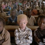 Albinos 'hunted like animals' for body parts in Malawi