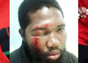DC youth bashed at party indaba