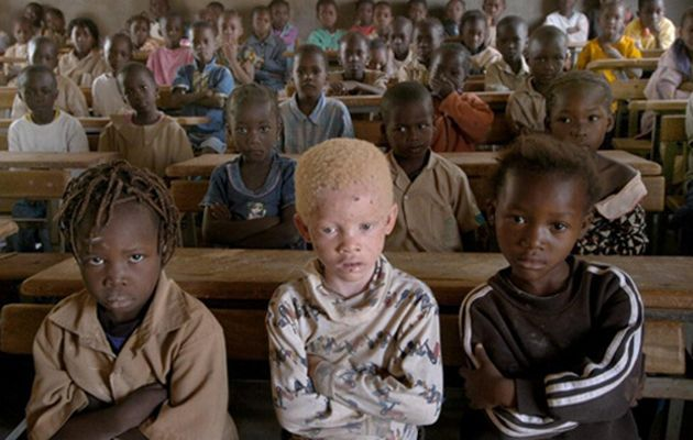 Albinos In Tanzania Are Being Hunted For Their Limbs - UNILAD